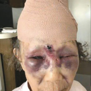 A photograph shows injuries the victim suffered during the attack on Feb. 10. (photo courtesy of the LAPD)