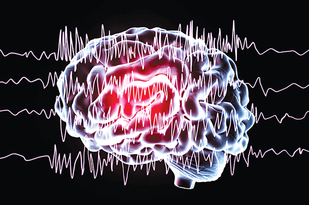 Epilepsy is a neurological disorder characterized by abnormal brain activity that can cause seizures. (illustration by Getty)